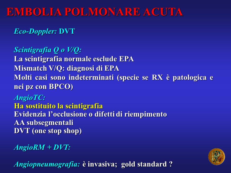 EMBOLIA POLMONARE ACUTA Eco-Doppler: DVT Scintigrafia Q o V/Q: La scintigrafia normale esclude EPA Mismatch V/Q: diagnosi di EPA Molti casi sono indet