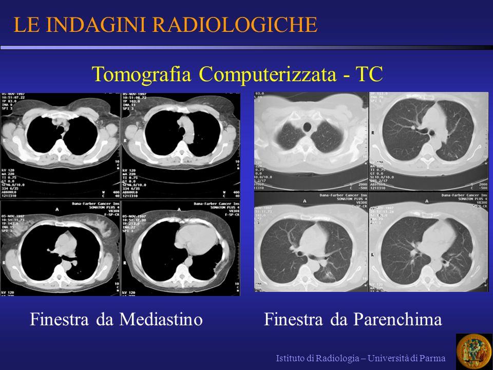 LE INDAGINI RADIOLOGICHE Istituto di Radiologia – Università di Parma Tomografia Computerizzata - TC Finestra da MediastinoFinestra da Parenchima