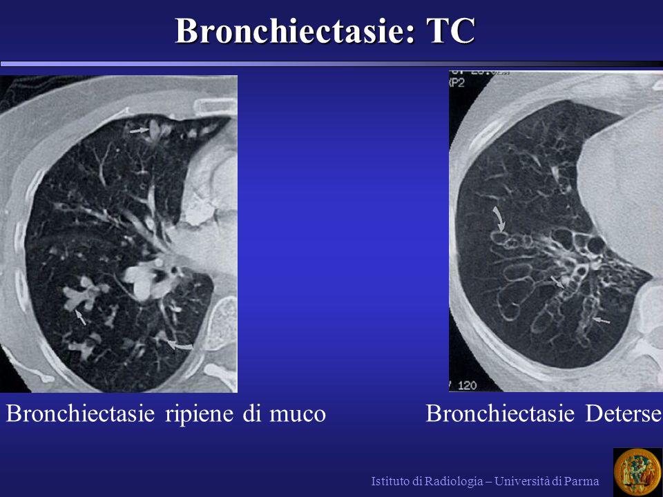 Bronchiectasie: TC Bronchiectasie: TC Istituto di Radiologia – Università di Parma Bronchiectasie DeterseBronchiectasie ripiene di muco