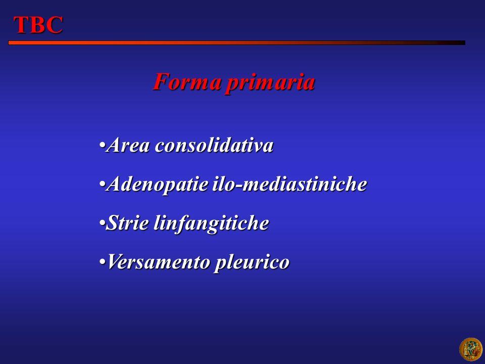 Forma primaria TBC Area consolidativaArea consolidativa Adenopatie ilo-mediastinicheAdenopatie ilo-mediastiniche Strie linfangiticheStrie linfangitich