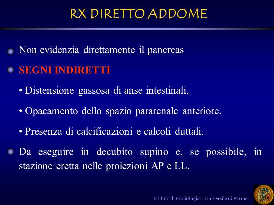 Istituto di Radiologia – Università di Parma Complicanze della PC: Complicanze della PC: - - Pseudocisti – aspetto sovrapponibile alle pseudocisti della pancreatite acuta.