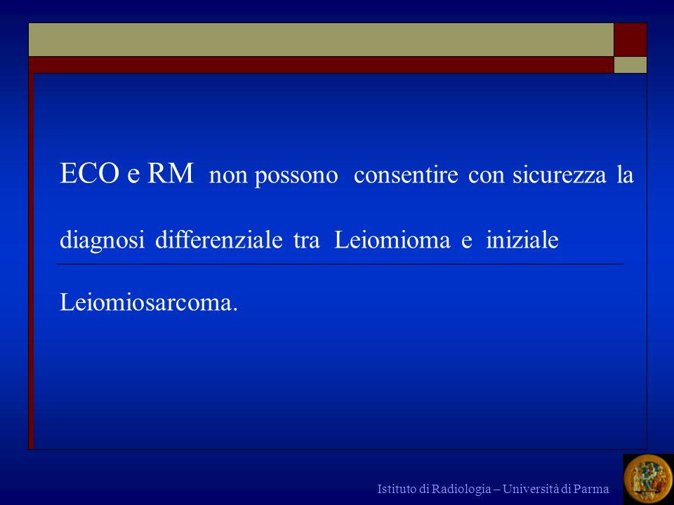 Istituto di Radiologia – Università di Parma ECO e RM non possono consentire con sicurezza la diagnosi differenziale tra Leiomioma e iniziale Leiomios