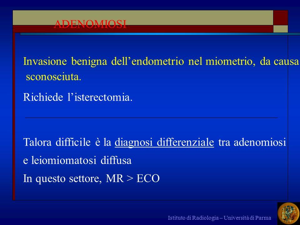 Istituto di Radiologia – Università di Parma Invasione benigna dellendometrio nel miometrio, da causa sconosciuta. Richiede listerectomia. Talora diff