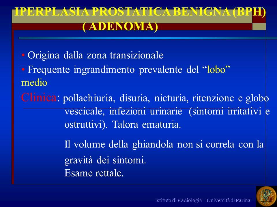 Istituto di Radiologia – Università di Parma IPERPLASIA PROSTATICA BENIGNA (BPH) ( ADENOMA) Origina dalla zona transizionale Frequente ingrandimento p