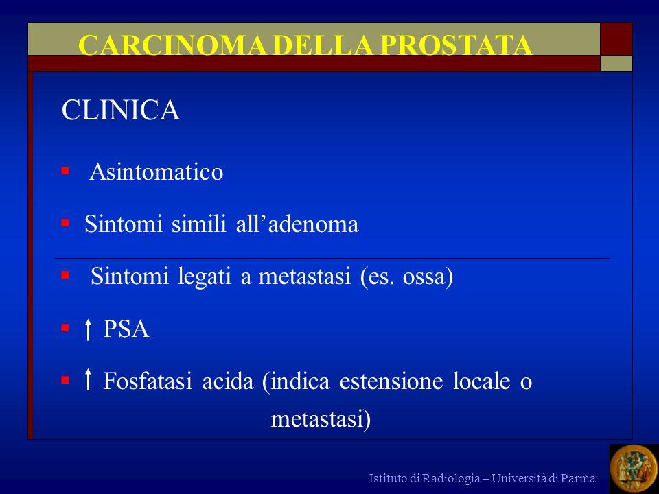 Istituto di Radiologia – Università di Parma Asintomatico Sintomi simili alladenoma Sintomi legati a metastasi (es. ossa) PSA Fosfatasi acida (indica