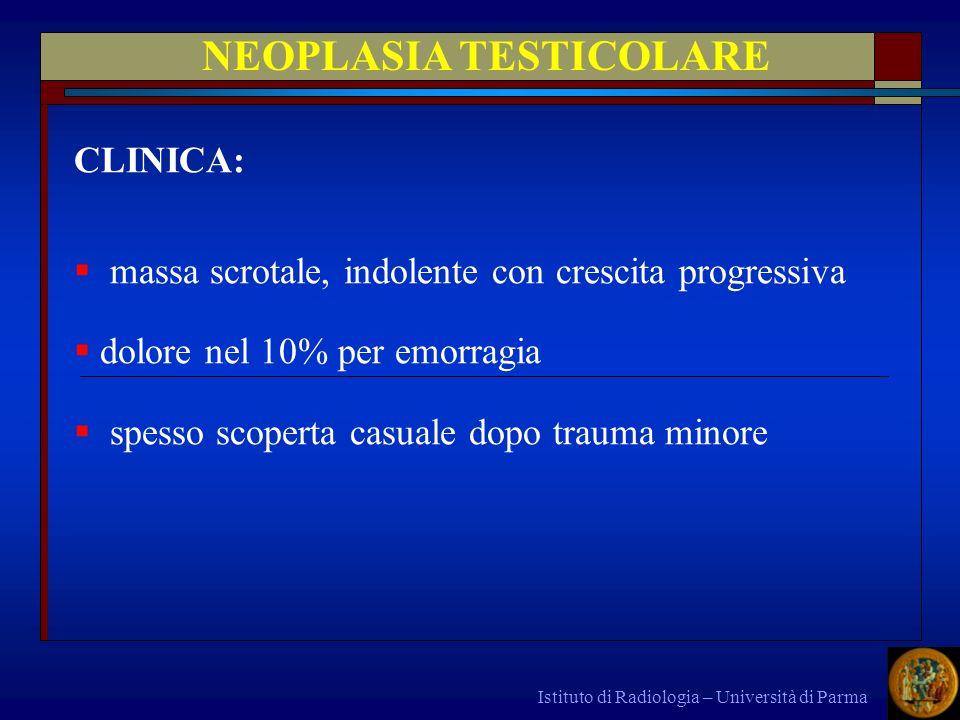 Istituto di Radiologia – Università di Parma NEOPLASIA TESTICOLARE CLINICA: massa scrotale, indolente con crescita progressiva dolore nel 10% per emor