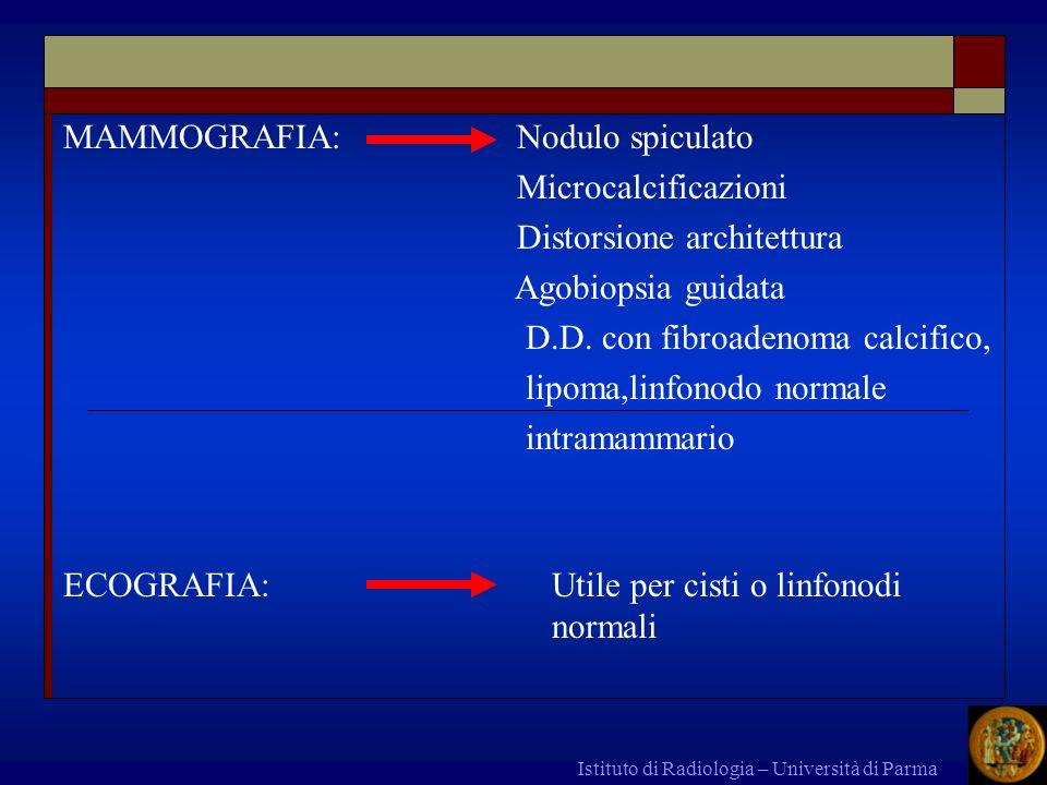 MAMMOGRAFIA: Nodulo spiculato Microcalcificazioni Distorsione architettura Agobiopsia guidata D.D. con fibroadenoma calcifico, lipoma,linfonodo normal