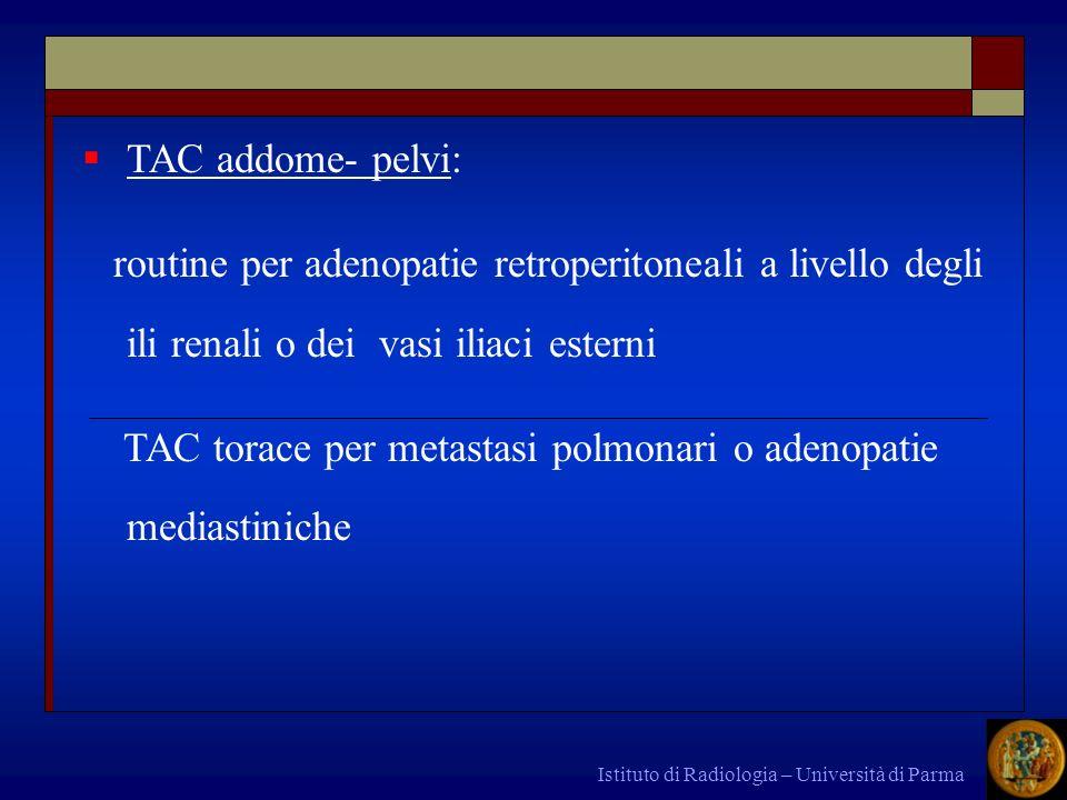 Istituto di Radiologia – Università di Parma TAC addome- pelvi: routine per adenopatie retroperitoneali a livello degli ili renali o dei vasi iliaci e