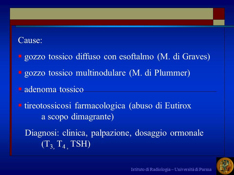 Istituto di Radiologia – Università di Parma Cause: gozzo tossico diffuso con esoftalmo (M. di Graves) gozzo tossico multinodulare (M. di Plummer) ade