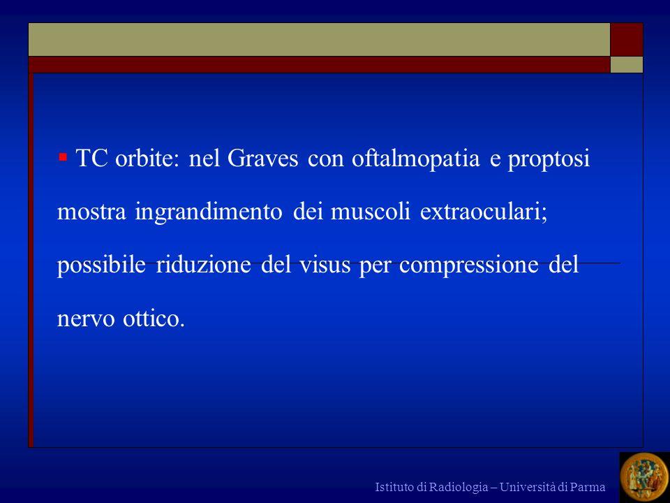 Istituto di Radiologia – Università di Parma TC orbite: nel Graves con oftalmopatia e proptosi mostra ingrandimento dei muscoli extraoculari; possibil