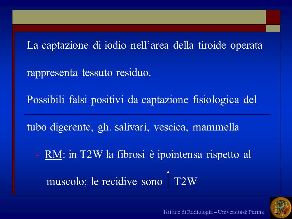 Istituto di Radiologia – Università di Parma La captazione di iodio nellarea della tiroide operata rappresenta tessuto residuo. Possibili falsi positi