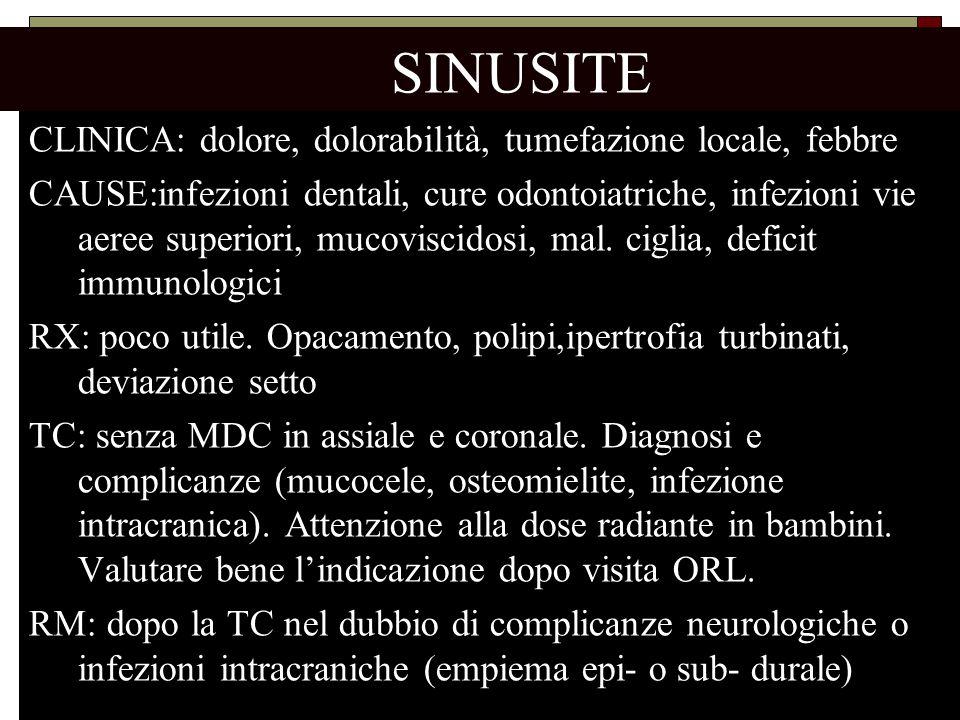 SINUSITE CLINICA: dolore, dolorabilità, tumefazione locale, febbre CAUSE:infezioni dentali, cure odontoiatriche, infezioni vie aeree superiori, mucovi