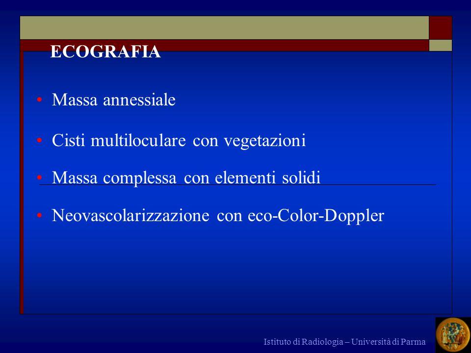 Istituto di Radiologia – Università di Parma ECOGRAFIA Massa annessiale Cisti multiloculare con vegetazioni Massa complessa con elementi solidi Neovas