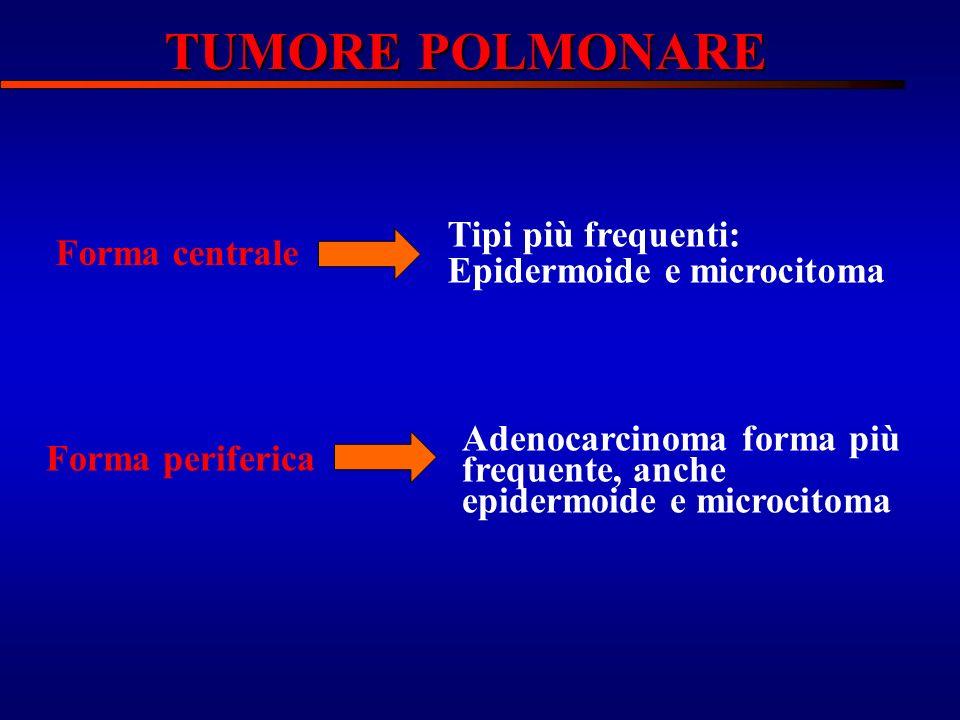 Forma centrale Tipi più frequenti: Epidermoide e microcitoma Forma periferica Adenocarcinoma forma più frequente, anche epidermoide e microcitoma TUMO