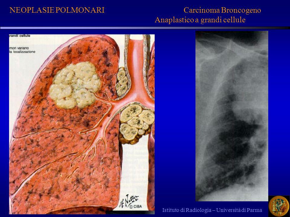 Istituto di Radiologia – Università di Parma NEOPLASIE POLMONARI Carcinoma Broncogeno Anaplastico a grandi cellule