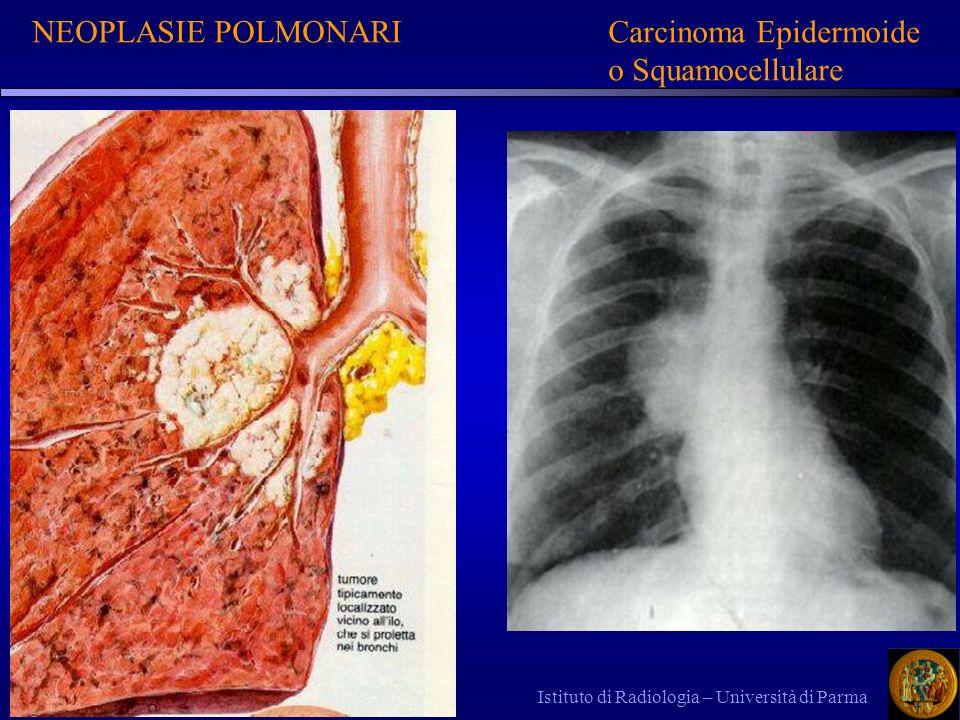 Istituto di Radiologia – Università di Parma NEOPLASIE POLMONARICarcinoma Epidermoide o Squamocellulare