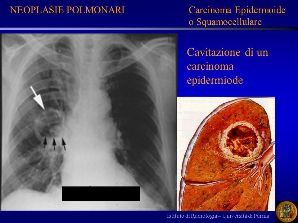 Istituto di Radiologia – Università di Parma NEOPLASIE POLMONARICarcinoma Epidermoide o Squamocellulare Cavitazione di un carcinoma epidermiode