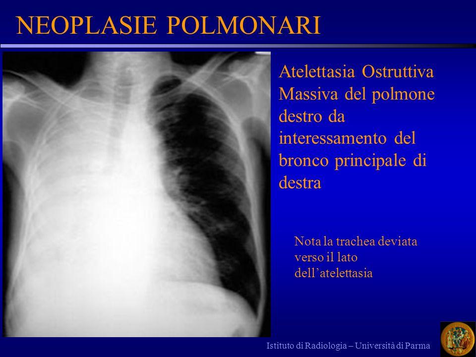 Istituto di Radiologia – Università di Parma NEOPLASIE POLMONARI Atelettasia Ostruttiva Massiva del polmone destro da interessamento del bronco princi
