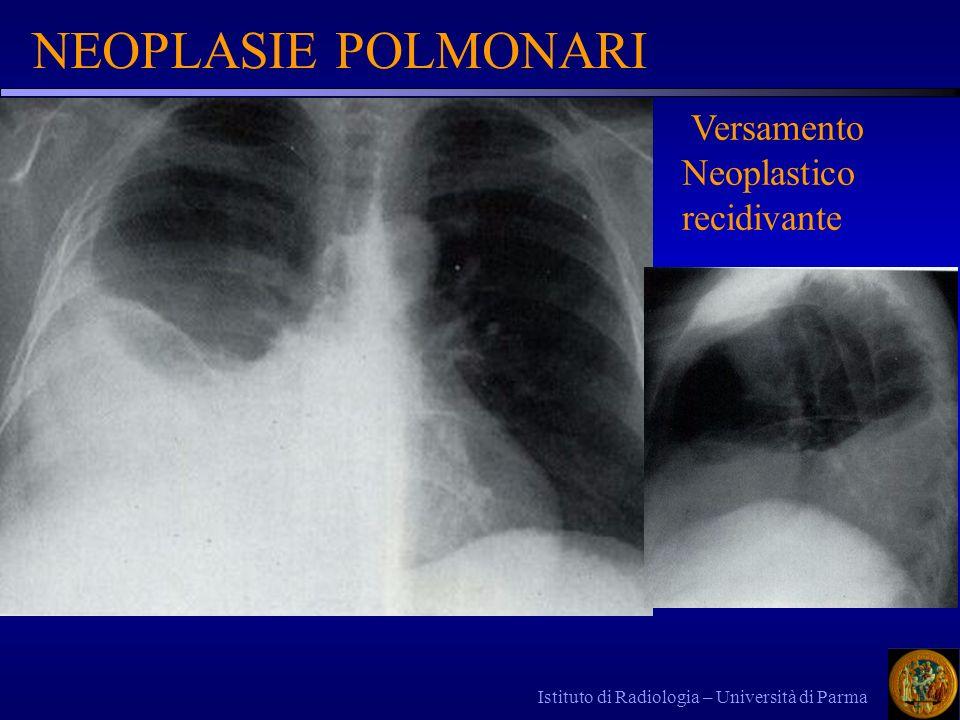 Istituto di Radiologia – Università di Parma NEOPLASIE POLMONARI Versamento Neoplastico recidivante