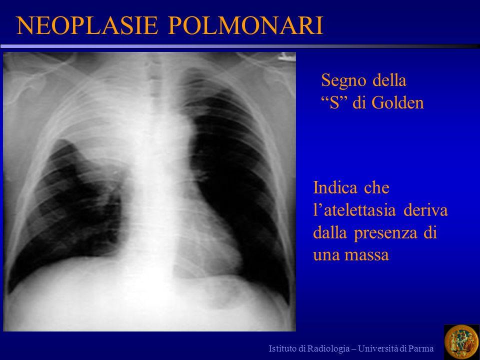 Istituto di Radiologia – Università di Parma NEOPLASIE POLMONARI Segno della S di Golden Indica che latelettasia deriva dalla presenza di una massa