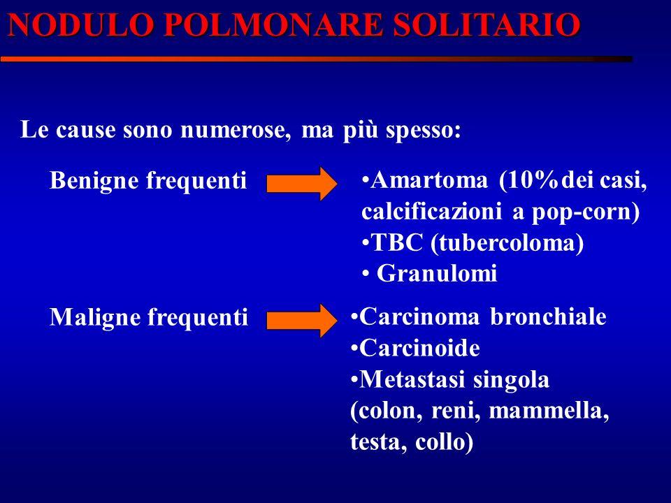NODULO POLMONARE SOLITARIO Le cause sono numerose, ma più spesso: Benigne frequenti Amartoma (10%dei casi, calcificazioni a pop-corn) TBC (tubercoloma