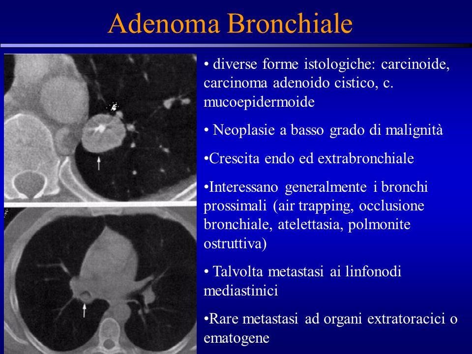 Adenoma Bronchiale diverse forme istologiche: carcinoide, carcinoma adenoido cistico, c. mucoepidermoide Neoplasie a basso grado di malignità Crescita