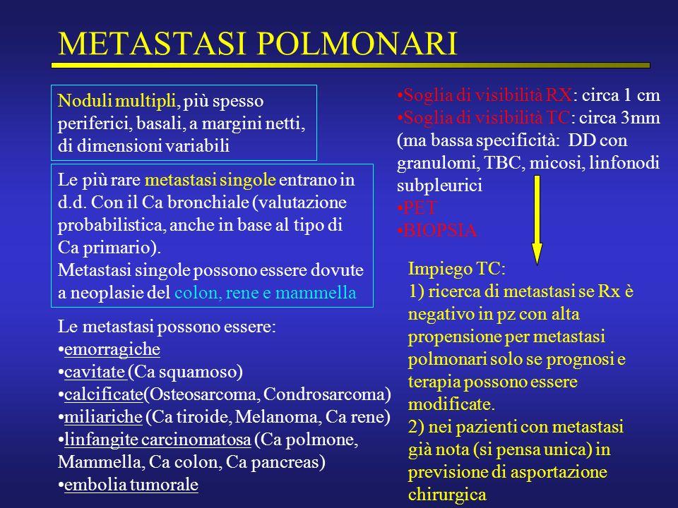 METASTASI POLMONARI Noduli multipli, più spesso periferici, basali, a margini netti, di dimensioni variabili Le più rare metastasi singole entrano in