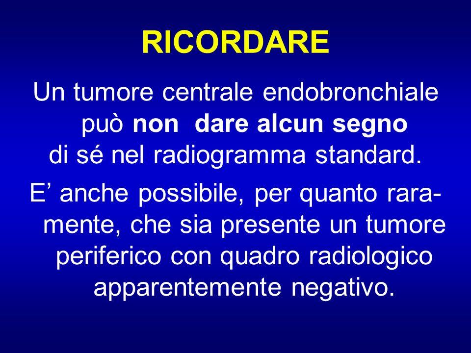 RICORDARE Un tumore centrale endobronchiale può non dare alcun segno di sé nel radiogramma standard. E anche possibile, per quanto rara- mente, che si