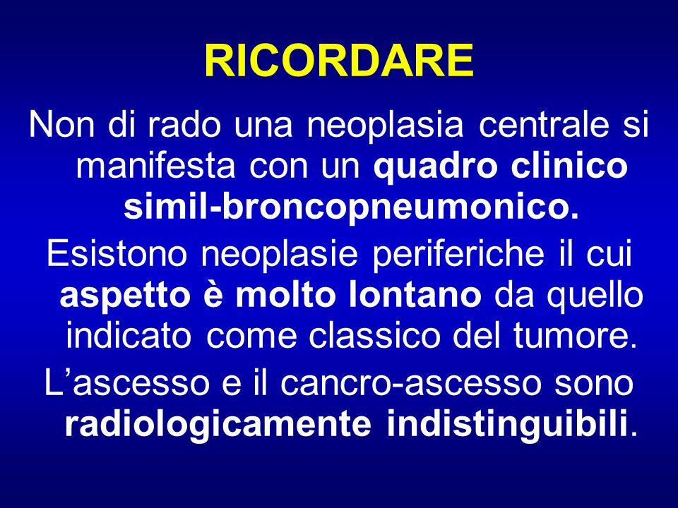 RICORDARE Non di rado una neoplasia centrale si manifesta con un quadro clinico simil-broncopneumonico. Esistono neoplasie periferiche il cui aspetto