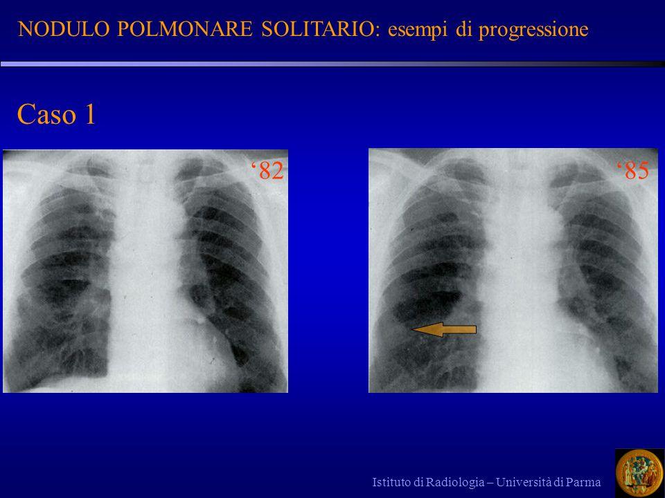 Istituto di Radiologia – Università di Parma NODULO POLMONARE SOLITARIO: esempi di progressione 8285 Caso 1