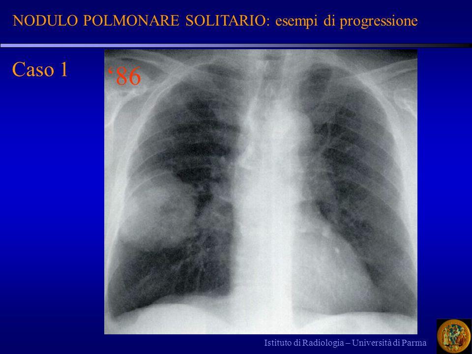 Istituto di Radiologia – Università di Parma 86 Caso 1 NODULO POLMONARE SOLITARIO: esempi di progressione