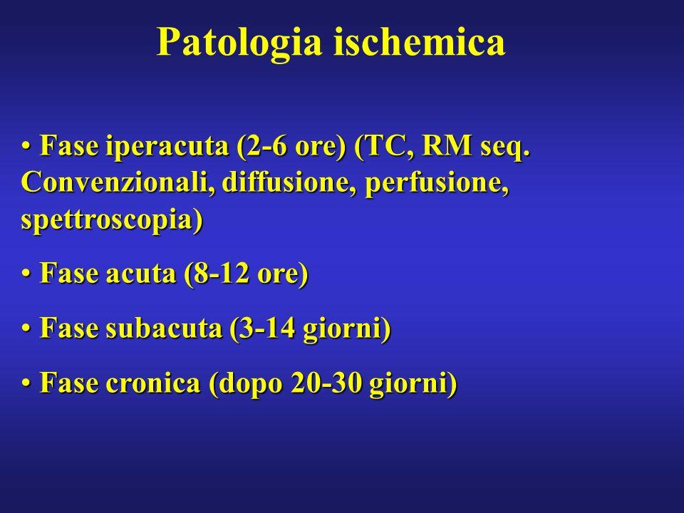 Patologia ischemica Fase iperacuta (2-6 ore) (TC, RM seq. Convenzionali, diffusione, perfusione, spettroscopia) Fase iperacuta (2-6 ore) (TC, RM seq.