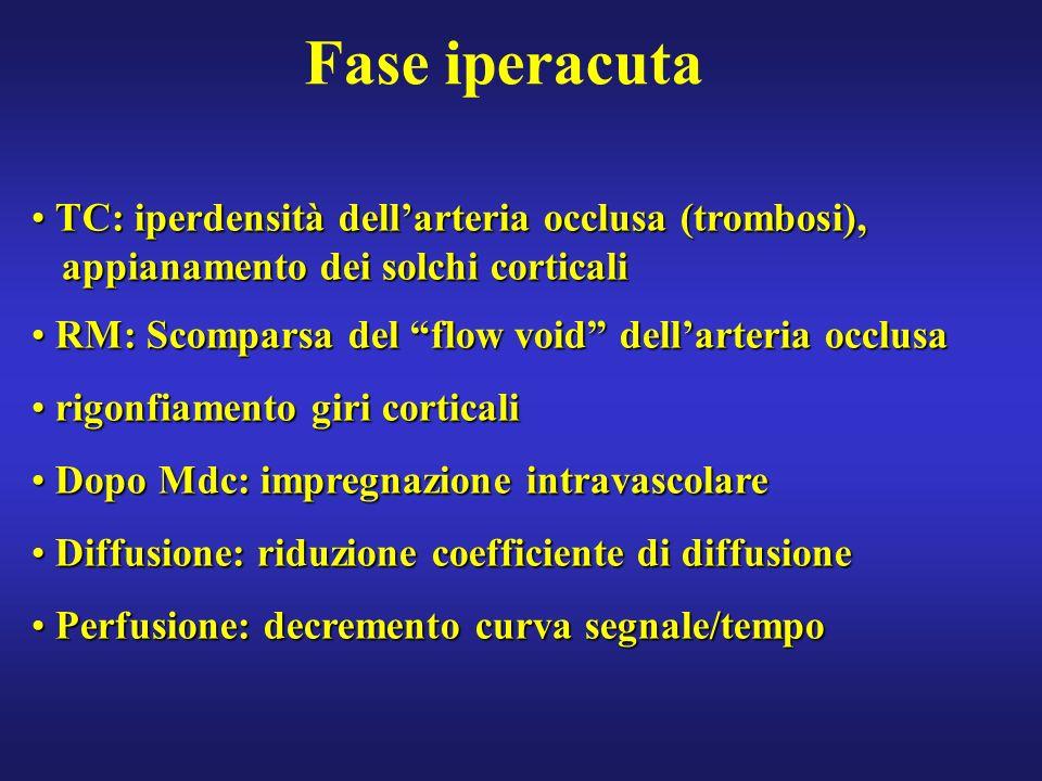 Fase iperacuta TC: iperdensità dellarteria occlusa (trombosi), TC: iperdensità dellarteria occlusa (trombosi), appianamento dei solchi corticali appia