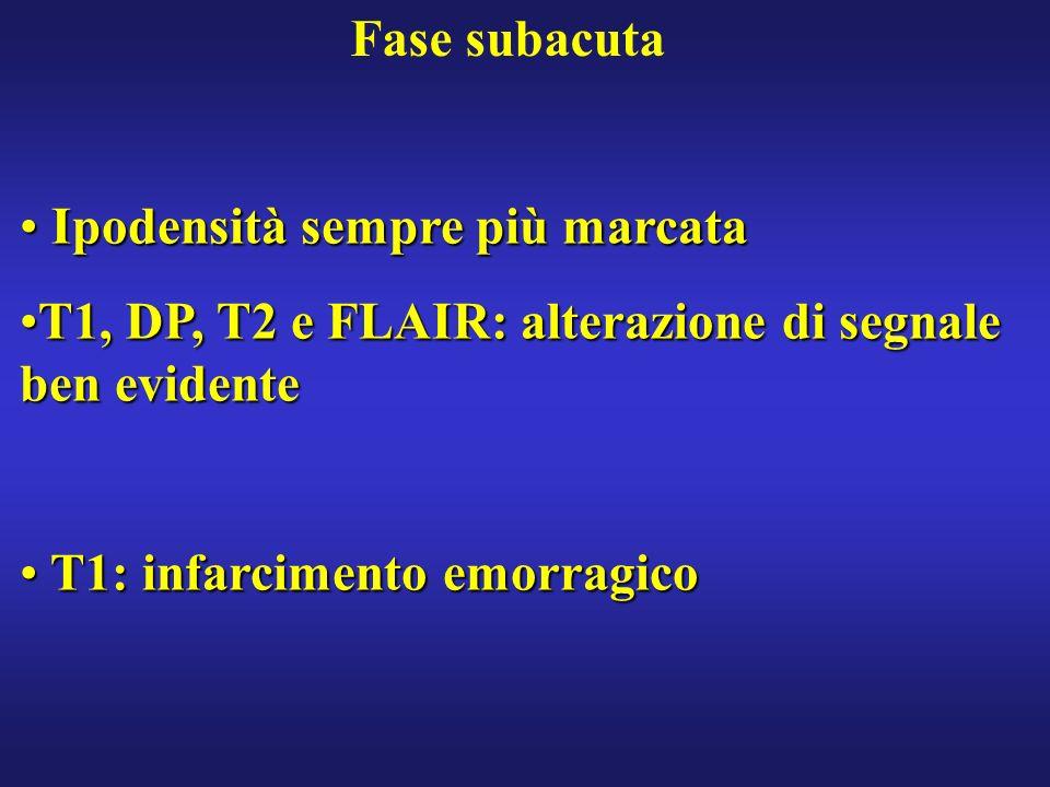 Fase subacuta Ipodensità sempre più marcata Ipodensità sempre più marcata T1, DP, T2 e FLAIR: alterazione di segnale ben evidenteT1, DP, T2 e FLAIR: a