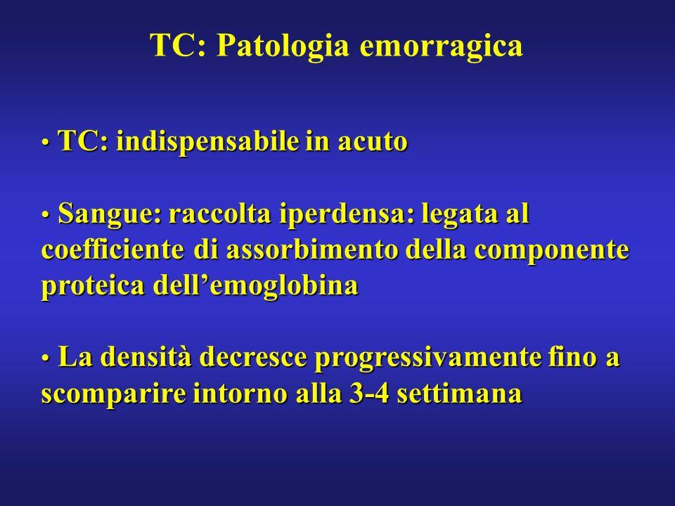 TC: Patologia emorragica TC: indispensabile in acuto TC: indispensabile in acuto Sangue: raccolta iperdensa: legata al coefficiente di assorbimento de