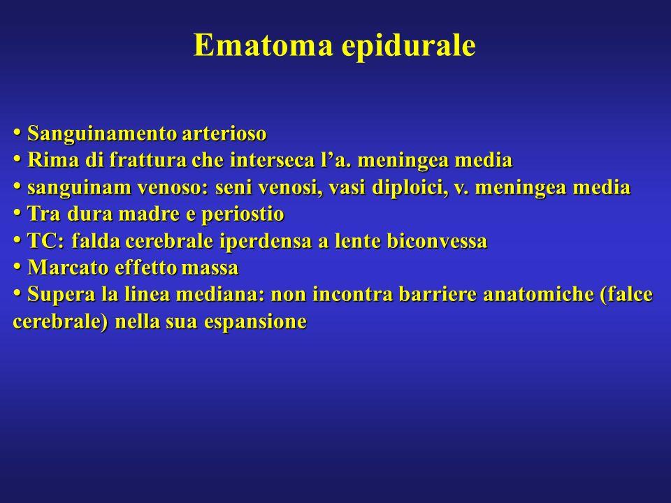 Ematoma epidurale Sanguinamento arterioso Sanguinamento arterioso Rima di frattura che interseca la. meningea media Rima di frattura che interseca la.