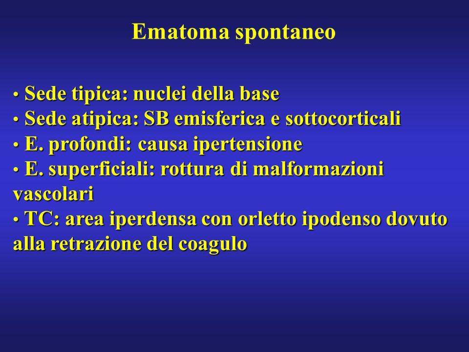 Ematoma spontaneo Sede tipica: nuclei della base Sede tipica: nuclei della base Sede atipica: SB emisferica e sottocorticali Sede atipica: SB emisferi