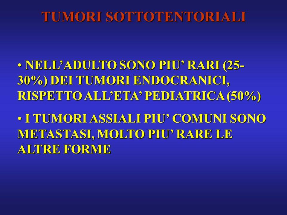 TUMORI SOTTOTENTORIALI NELLADULTO SONO PIU RARI (25- 30%) DEI TUMORI ENDOCRANICI, RISPETTO ALLETA PEDIATRICA (50%) NELLADULTO SONO PIU RARI (25- 30%)
