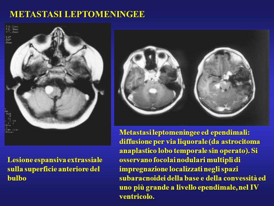 METASTASI LEPTOMENINGEE Lesione espansiva extrassiale sulla superficie anteriore del bulbo Metastasi leptomeningee ed ependimali: diffusione per via l
