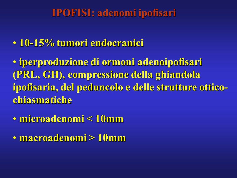 IPOFISI: adenomi ipofisari 10-15% tumori endocranici 10-15% tumori endocranici iperproduzione di ormoni adenoipofisari (PRL, GH), compressione della g