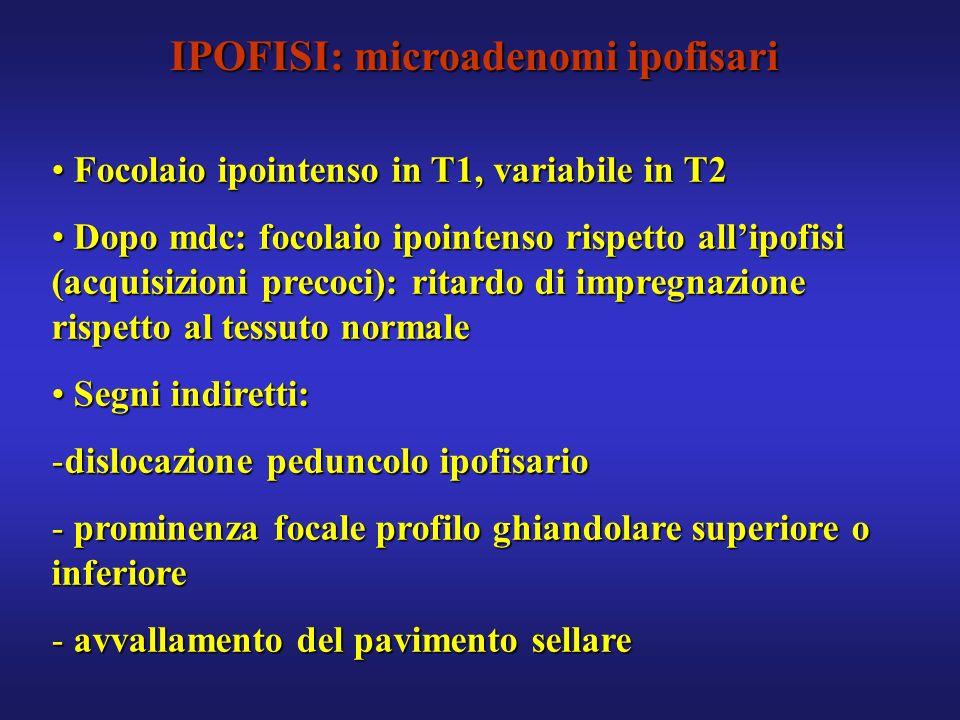IPOFISI: microadenomi ipofisari Focolaio ipointenso in T1, variabile in T2 Focolaio ipointenso in T1, variabile in T2 Dopo mdc: focolaio ipointenso ri