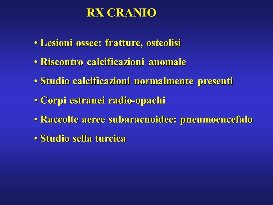 RX CRANIO Lesioni ossee: fratture, osteolisi Lesioni ossee: fratture, osteolisi Riscontro calcificazioni anomale Riscontro calcificazioni anomale Stud