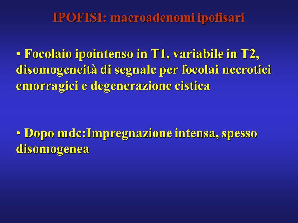 IPOFISI: macroadenomi ipofisari Focolaio ipointenso in T1, variabile in T2, disomogeneità di segnale per focolai necrotici emorragici e degenerazione
