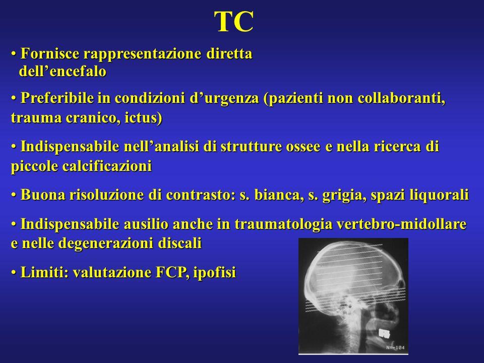 IPOFISI: microadenomi ipofisari Focolaio ipointenso in T1, variabile in T2 Focolaio ipointenso in T1, variabile in T2 Dopo mdc: focolaio ipointenso rispetto allipofisi (acquisizioni precoci): ritardo di impregnazione rispetto al tessuto normale Dopo mdc: focolaio ipointenso rispetto allipofisi (acquisizioni precoci): ritardo di impregnazione rispetto al tessuto normale Segni indiretti: Segni indiretti: -dislocazione peduncolo ipofisario - prominenza focale profilo ghiandolare superiore o inferiore - avvallamento del pavimento sellare