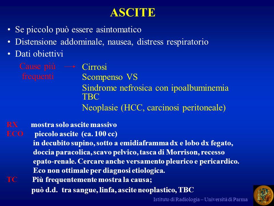 Istituto di Radiologia – Università di Parma altre cause di massa surrenalica sono: - carcinoma surrene - cisti - emorragia - mielolipoma (grasso, calcio, tessuti molli,emorragia) - angioma - tumori della midollare surrenalica Diagnosi TAC agevole per cisti, emorragia, mielolipoma, molti casi di adenoma e ca.