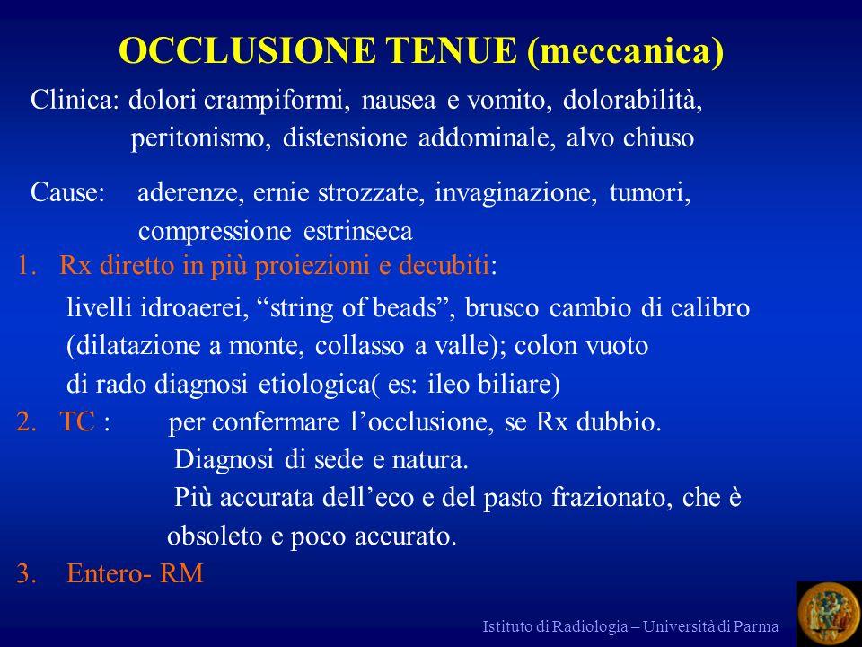 Istituto di Radiologia – Università di Parma Clinica: dolori crampiformi, nausea e vomito, dolorabilità, peritonismo, distensione addominale, alvo chi
