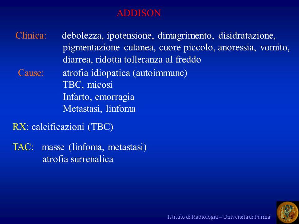 Istituto di Radiologia – Università di Parma ADDISON Clinica: debolezza, ipotensione, dimagrimento, disidratazione, pigmentazione cutanea, cuore picco