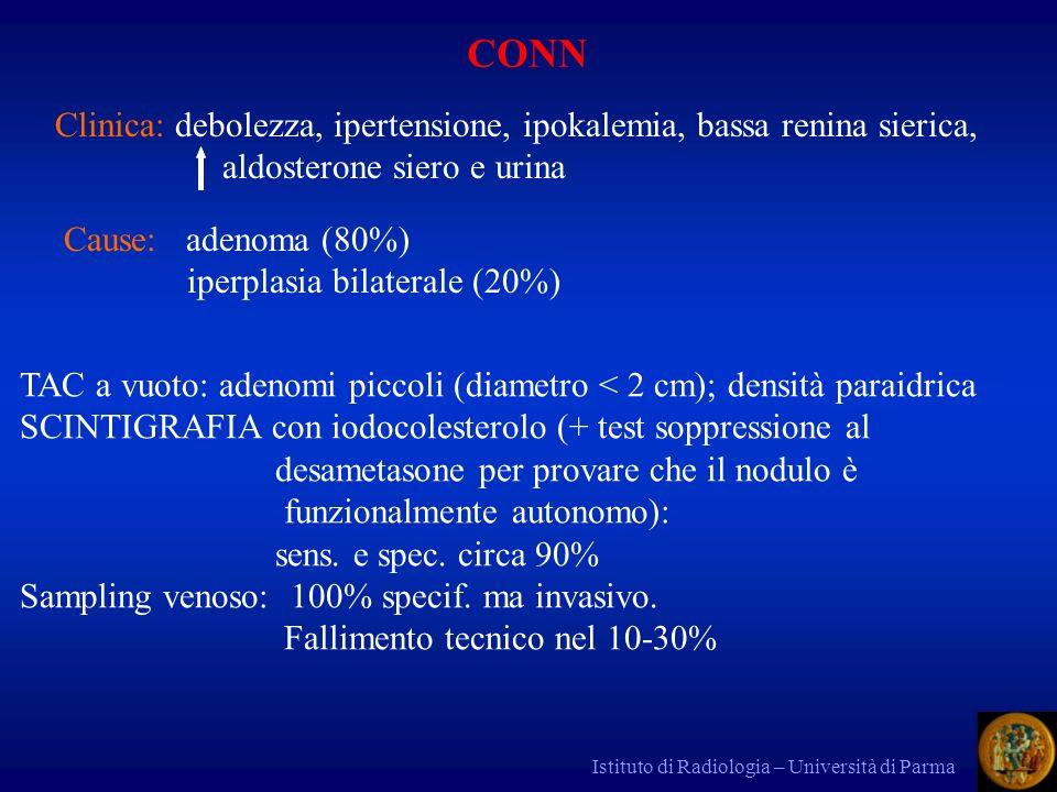 Istituto di Radiologia – Università di Parma CONN Clinica: debolezza, ipertensione, ipokalemia, bassa renina sierica, aldosterone siero e urina Cause: