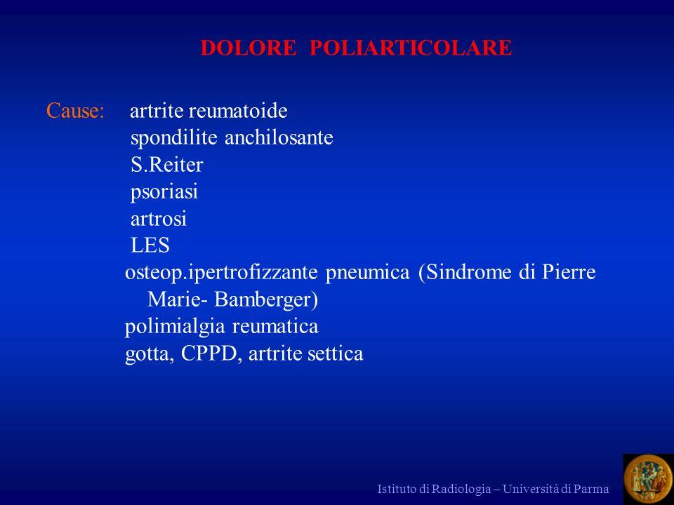 Istituto di Radiologia – Università di Parma DOLORE POLIARTICOLARE Cause: artrite reumatoide spondilite anchilosante S.Reiter psoriasi artrosi LES ost