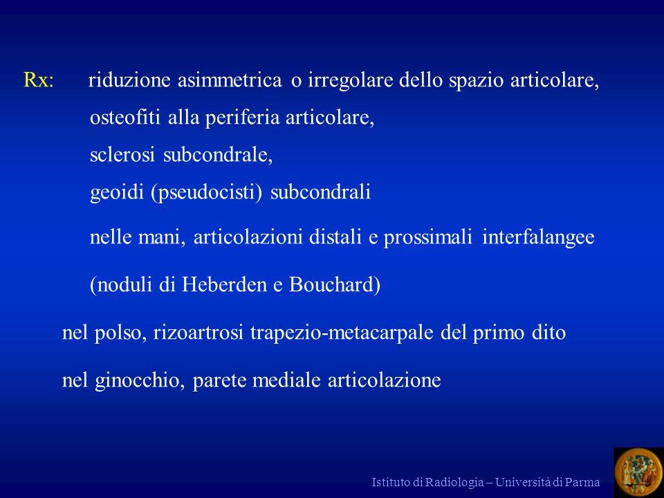 Istituto di Radiologia – Università di Parma Rx: riduzione asimmetrica o irregolare dello spazio articolare, osteofiti alla periferia articolare, scle